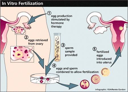 Let's Understand In Vitro Fertilization