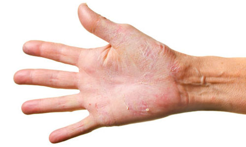 Should You Visit A Doctor Or Use Home Remedies