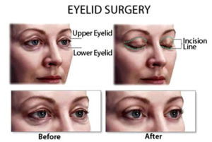 How an Eyelid Surgery is Performed – A Detailed Walkthrough