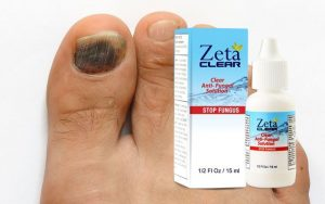 Zetaclear – An effective Remedy for Nail Infection